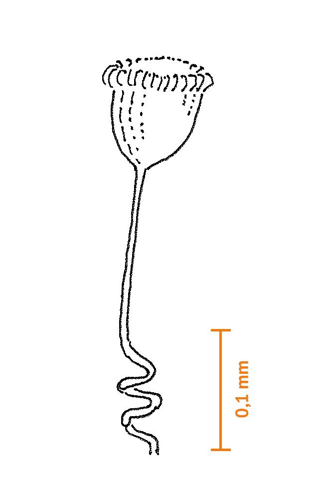 Klockdjur (Vorticella sp.) klockan är ca 0,08 mm)